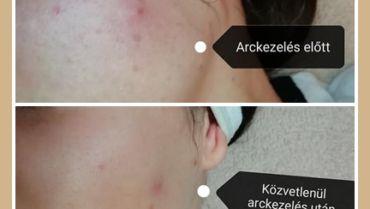 Milyen lesz a bőröm arckezelés után?